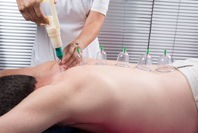 Physiotherapy Center in Dubai for cupping
